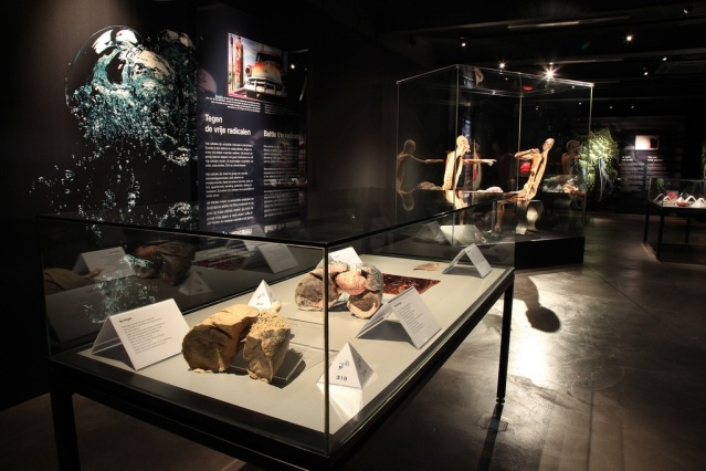 Organs on display ( image courtesy of Body Worlds, Amsterdam)